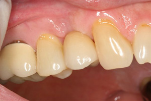 Louisiana Dental Implant Step 4